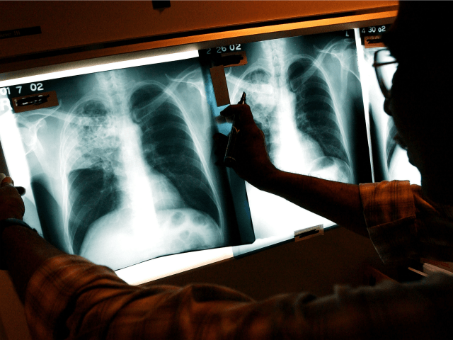 Sixty-Nine Percent of U.S. TB Cases in 2017 Were Diagnosed in Foreign-Born Residents