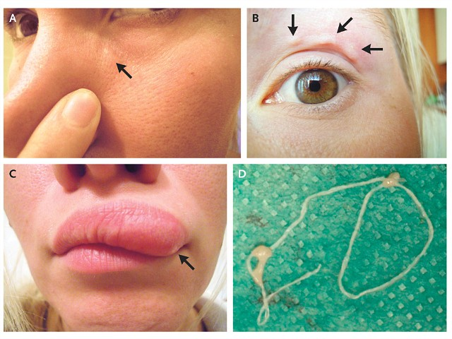 Woman Documents Moving Lump on Face with Selfies, Doctors Find Parasite