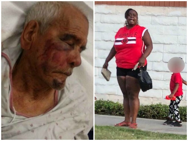 Woman Arrested for Allegedly Beating 92-Year-Old Los Angeles Man with Brick