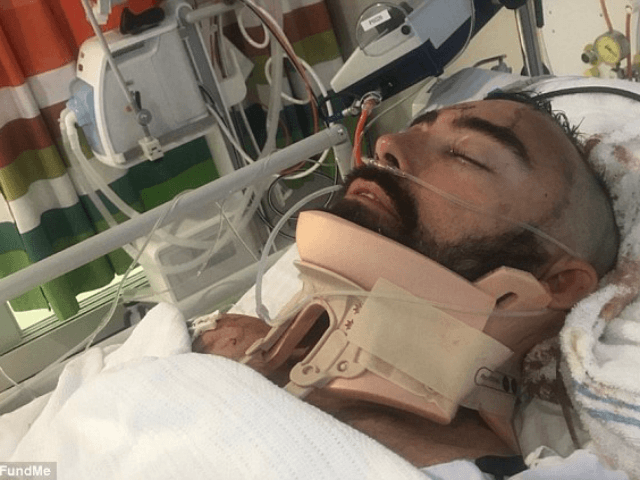 Hero Father Cracks Skull Leaping off 13-Foot Balcony to Save Son