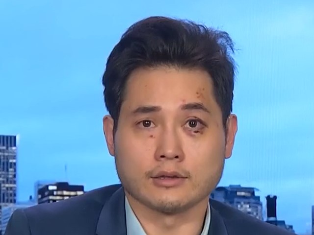 Andy Ngo: 'How Many More People Have to Be Beaten and Attacked in the City of Portland Before Things Change?'